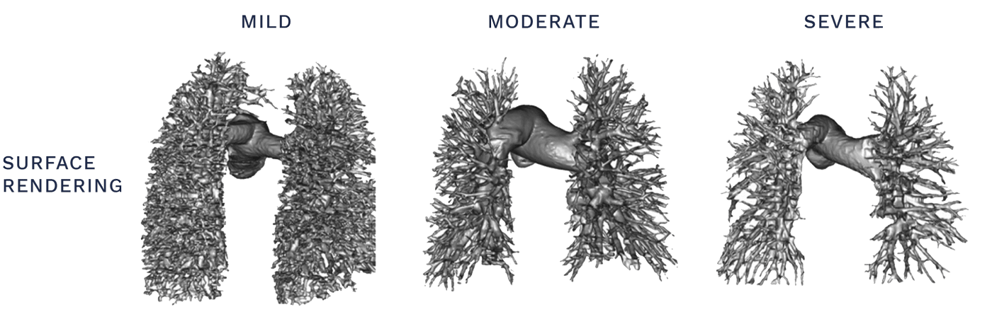 Pulmonary Vasculature Remodels as PAH Progresses
